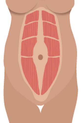 Abdominal separation